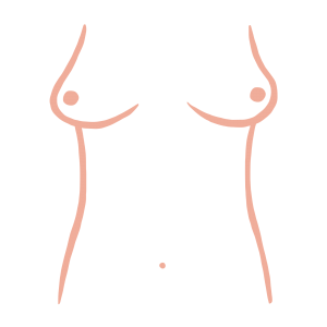 East west breast shape from ThirdLove's Breast Shape Dictionary